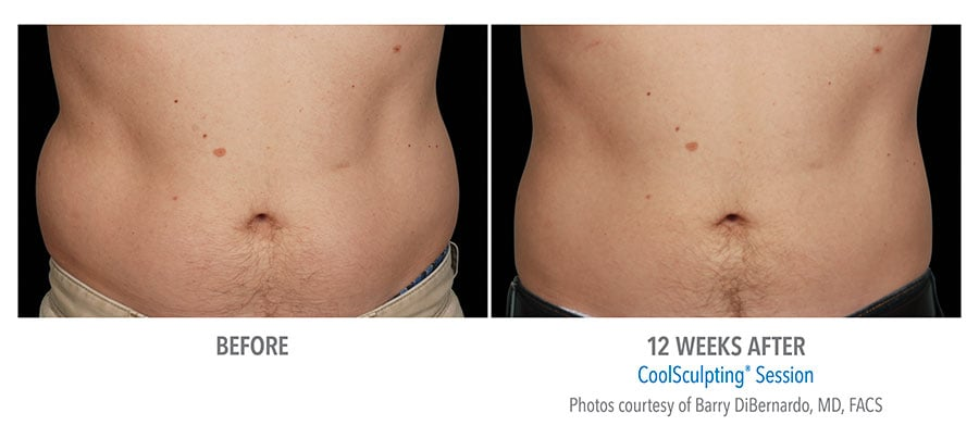 coolsculpting for men Edmonds, WA
