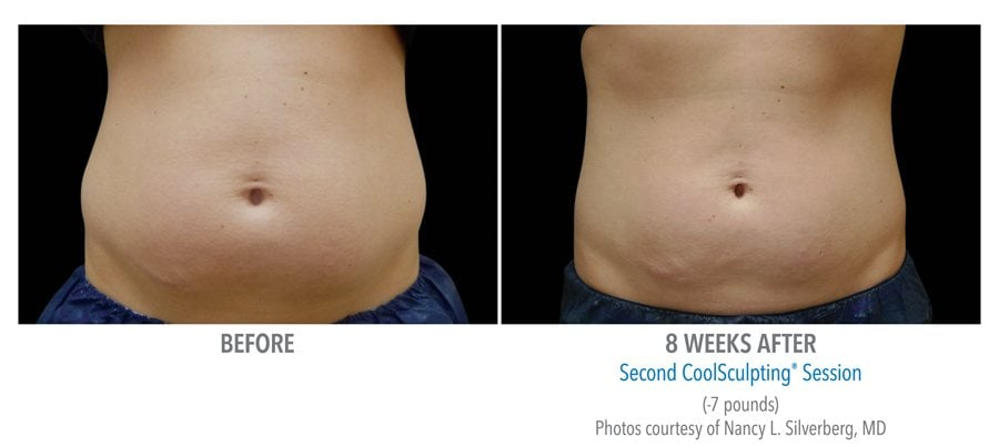 abdomen coolsculpting Edmonds, WA