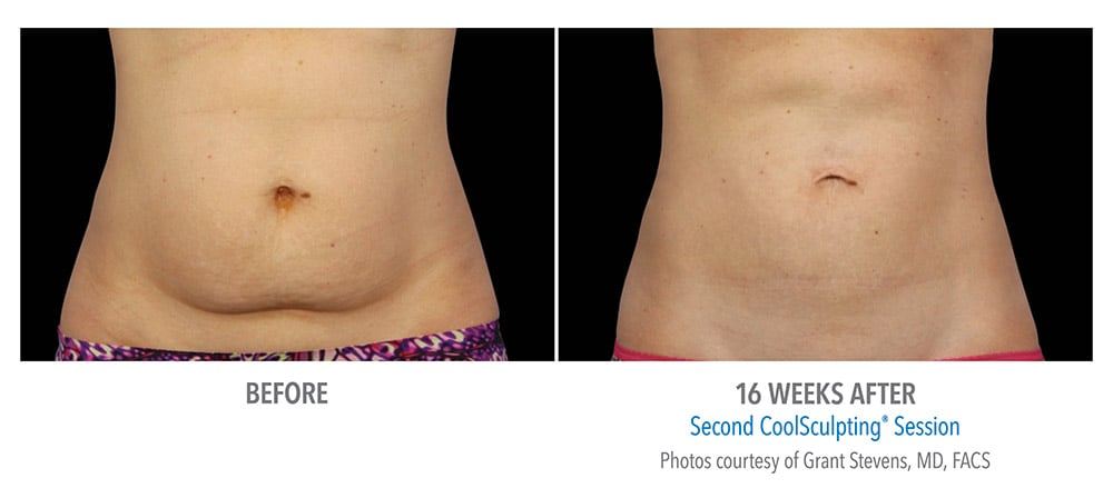 abdomen coolsculpting treatment Edmonds, WA