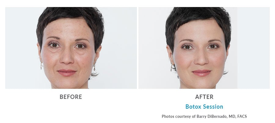 botox injections Edmonds, WA