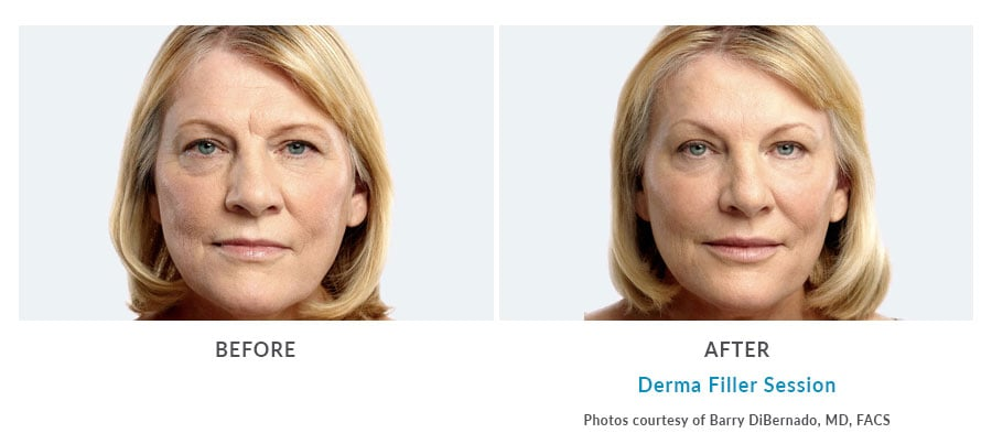 Dermal Filler Edmonds, WA