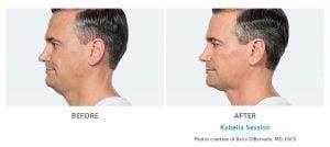 kybella double chin removal Edmonds, WA