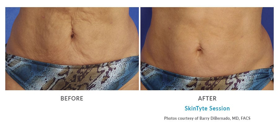 skintyte body contouring Edmonds, WA