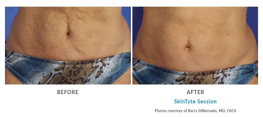 skintyte body contouring Edmonds, WA