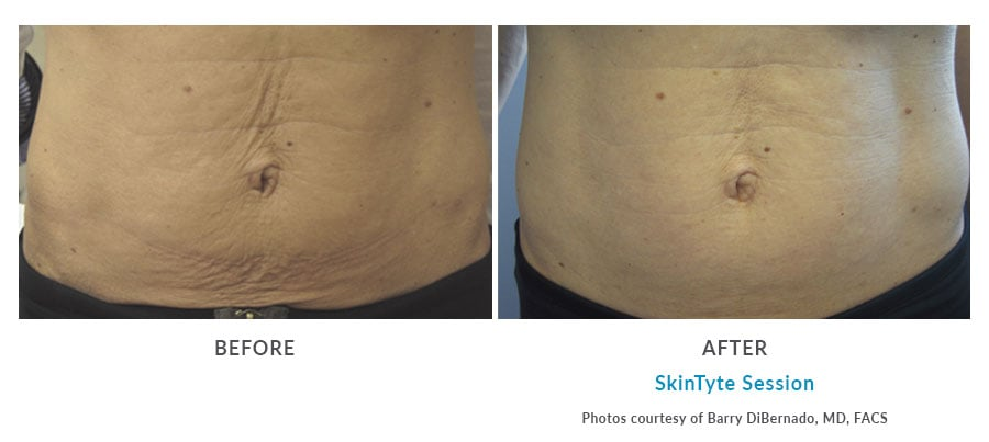 skintyte skin tightening Edmonds, WA