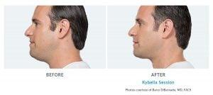kybella chin fat reduction Edmonds, WA