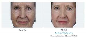 facial wrinkles with TRL Edmonds, WA