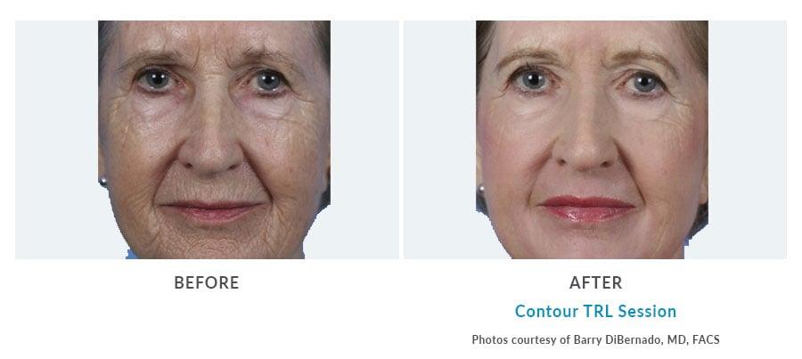 smooth facial wrinkles Edmonds, WA