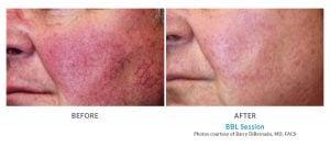 rosacea treatment with BBL Edmonds, WA