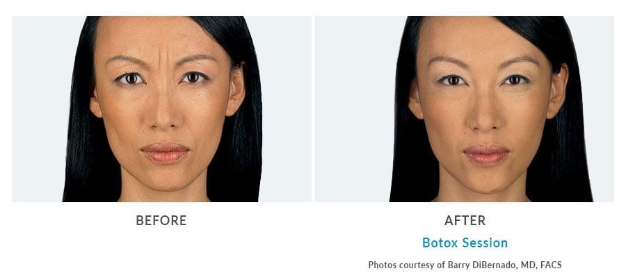 botox facial injection Edmonds, WA
