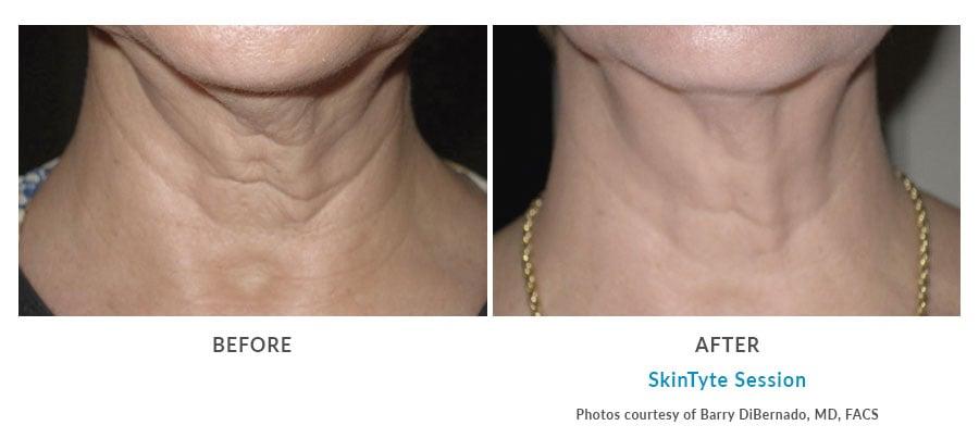 neck lift with skintyte Edmonds, WA