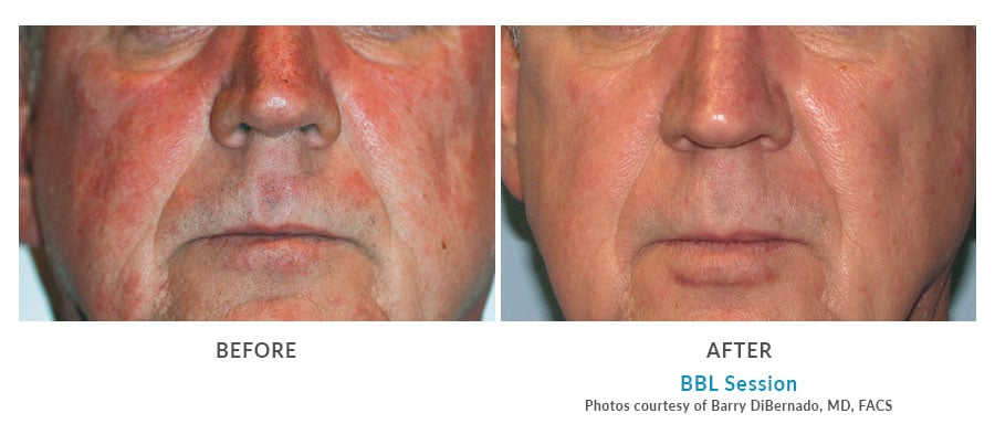 BBL rosacea Edmonds, WA