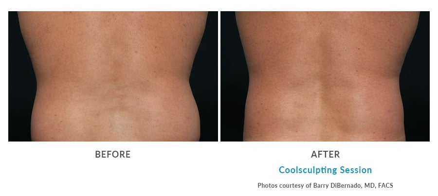 coolsculpting Edmonds, WA