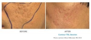 acne scar treatment with TRL Edmonds, WA