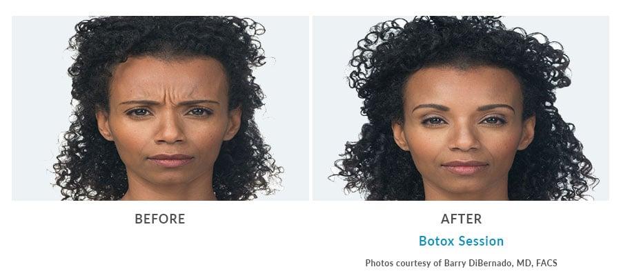botox face filler Edmonds, WA