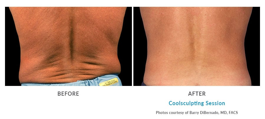 coolsculpting love handles Edmonds, WA
