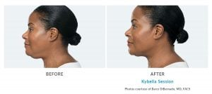 kybella double chin Edmonds, WA