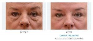 facial wrinkle reduction Edmonds, WA