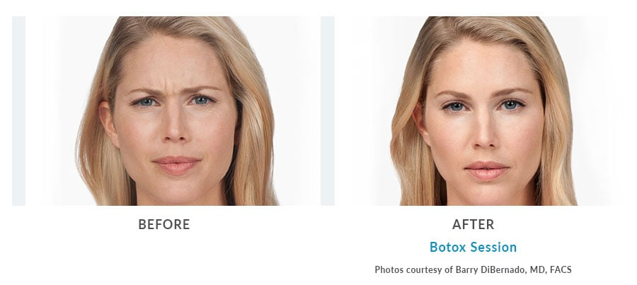 botox injection Edmonds, WA