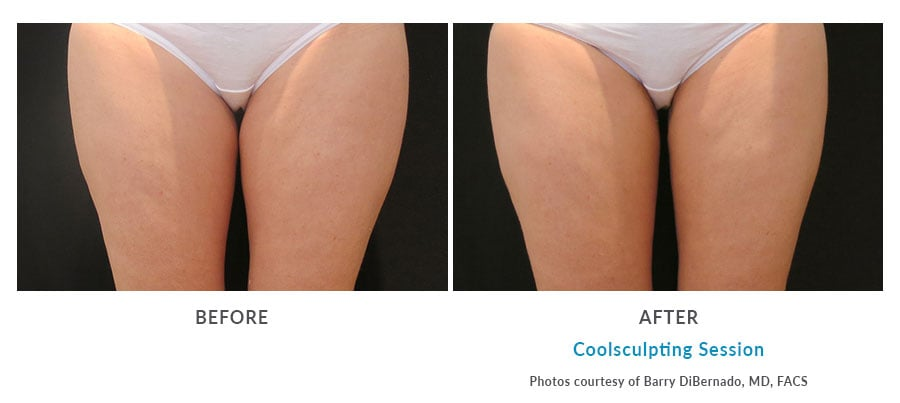 coolsculpting thighlift Edmonds, WA