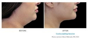 coolsculpting double chin Edmonds, WA