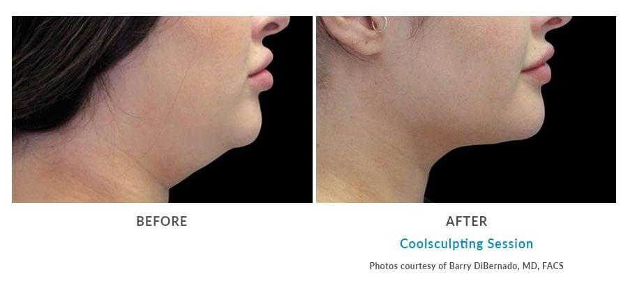 coolsculpting double chin Edmonds, WA