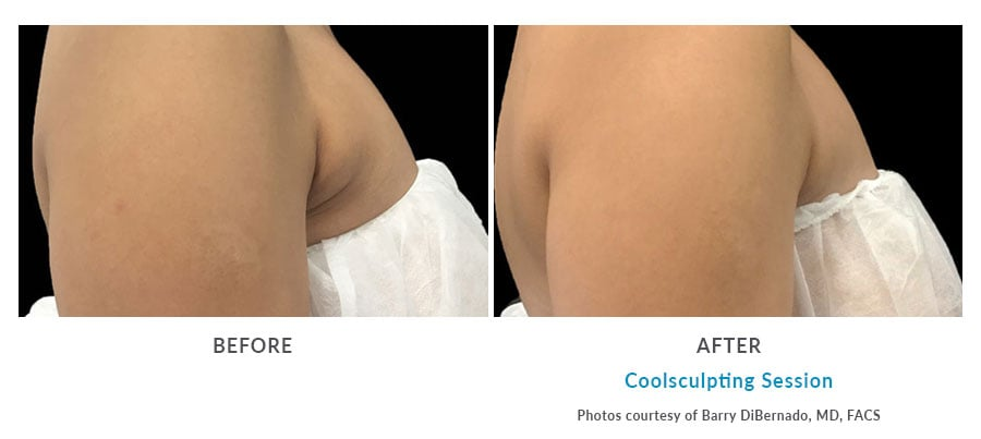 coolsculpting arms Edmonds, WA