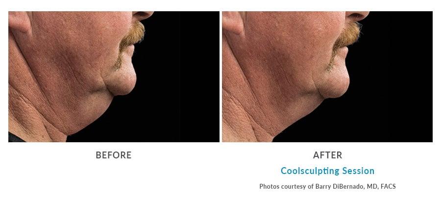 coolsculpting double chin reduction Edmonds, WA